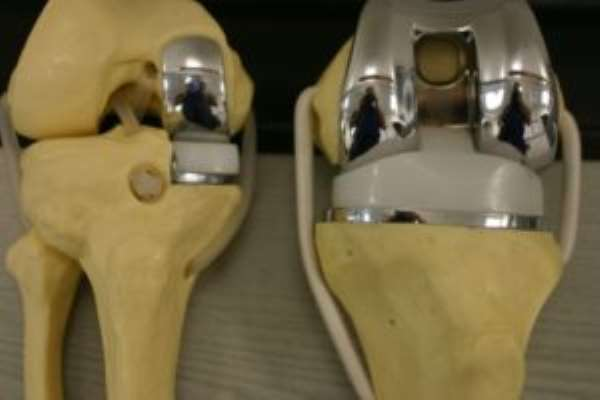 Total Partial Knee Replacement Surgery