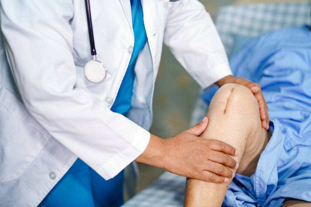 Cost of Knee replacement surgery