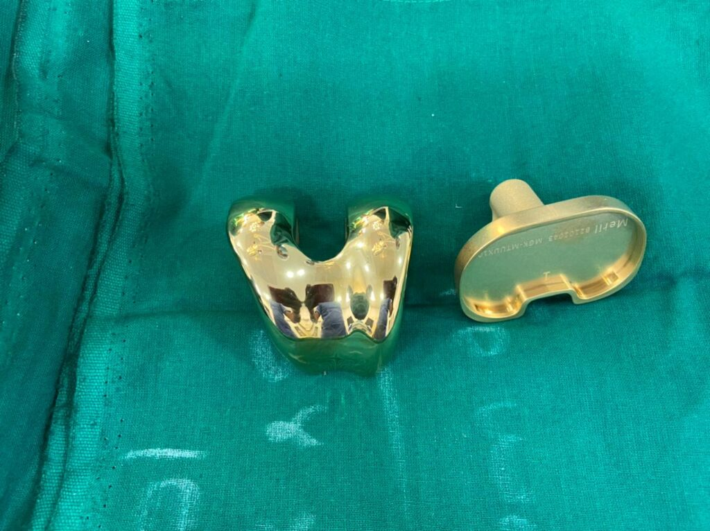 Gold Plated Knee Implant